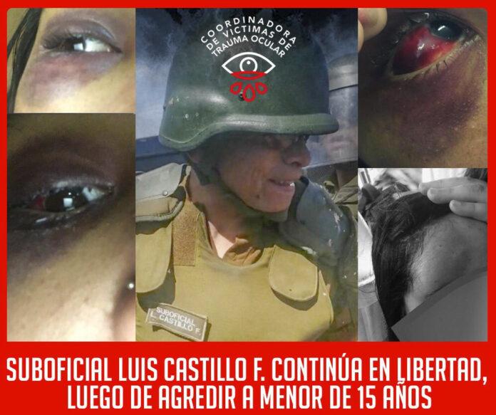 De un lumazo en la cabeza el suboficial Luis Castillo cegó a Alondra V.C.J., de 14 años